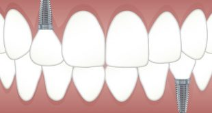 שתלים בשיניים כאבים