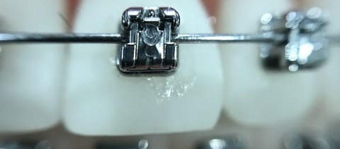 מרפאת שיניים בהוד השרון